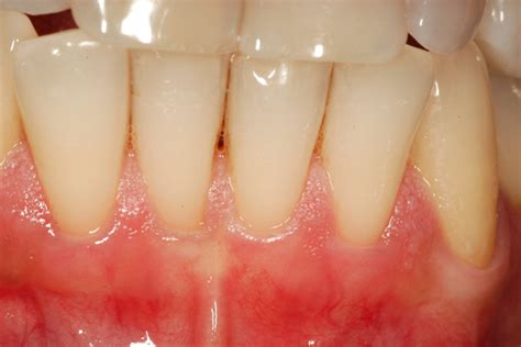 color of s gums what color are gums healthy images