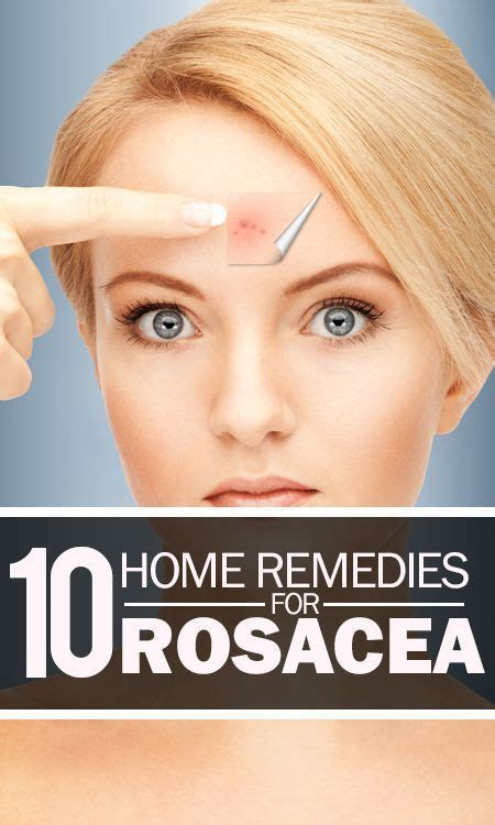 1000 ideas about rosacea makeup on rosacea