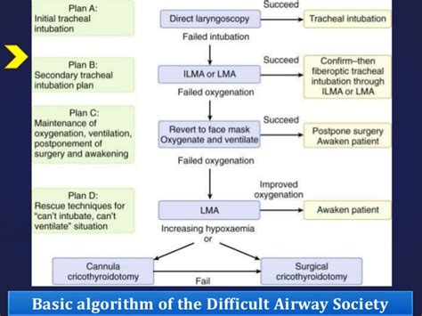 management of cesarean section airway management of pregnant patient in cesarean section