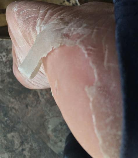 peeling dead skin on images