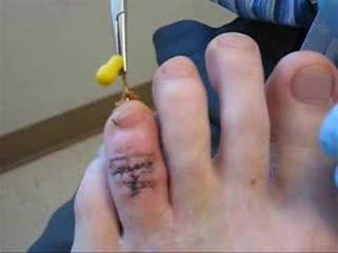 surgery to fix a toe that had been crushed 3 years ago and