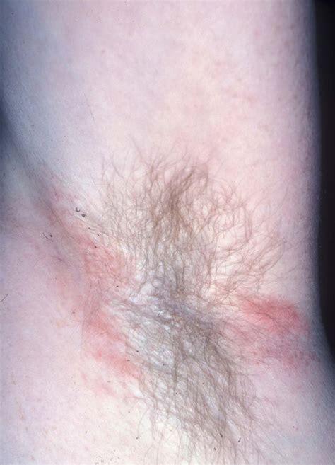 allergic dermatitis allergic contact dermatitis التهاب جلد أرجي بالتماس