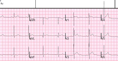brugada pattern types dr smith s ecg blog is this type 2 brugada syndrome ecg
