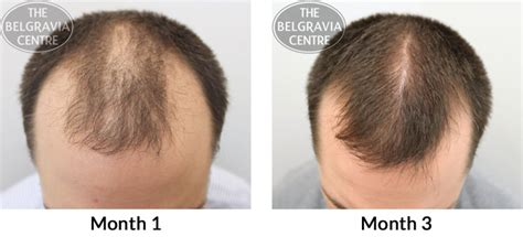 rogaine success stories in women image gallery minoxidil shedding