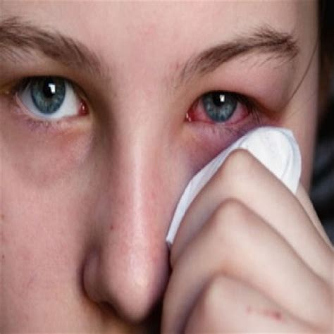 eye infection home remedy 11 simple home remedies for eye infection treatments cure for eye