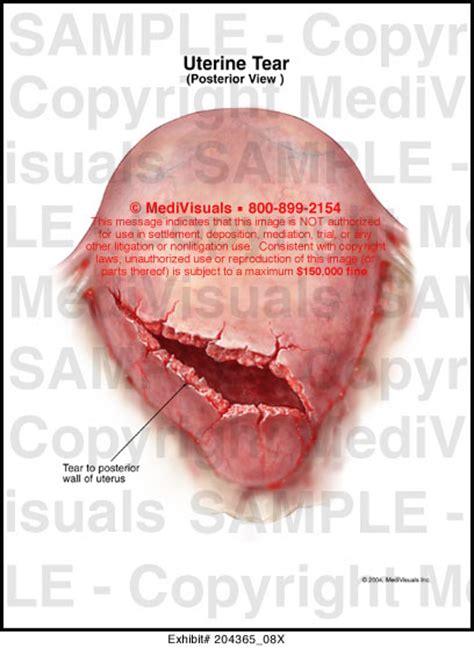 uterus tear during c section uterine tear medical illustration medivisuals