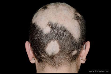 Hair Disease Types by Alopecia Areata Related Keywords Alopecia Areata