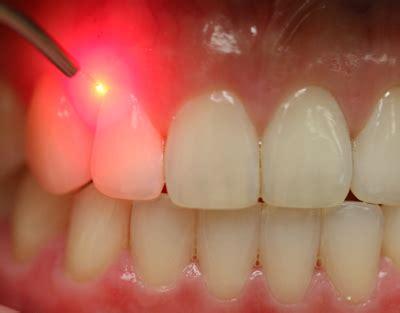 laser dentistry sunnyvale dentist ca 94086 teeth whitening 94086