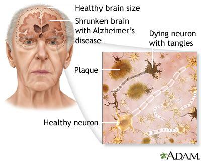 viral link  alzheimers disease