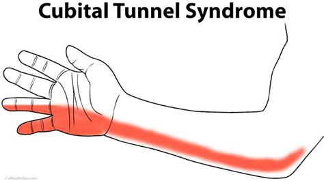 hitting nerve in elbow 1000 images about cubital tunnel syndrome on pinterest