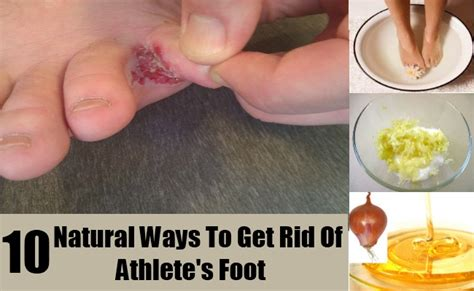 how to kill athlete s foot in shoes symptoms candida albicans overgrowth home remedy fungal