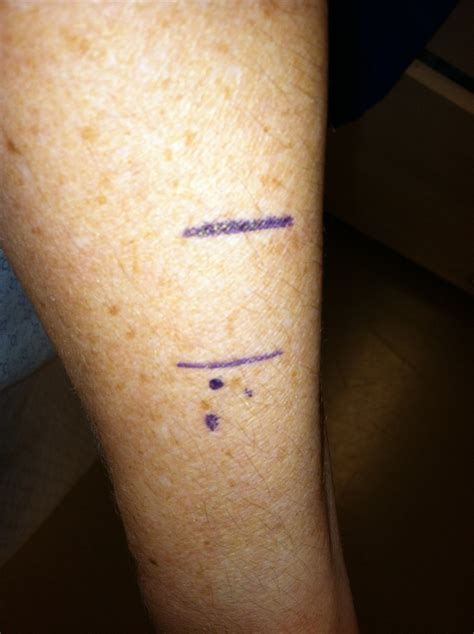 Tattoo Over Freckles | my dermatologist mapped out the location of my future