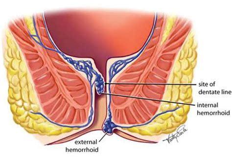 hemorrhoid what they look like what do hemorrhoids look like internal vs external