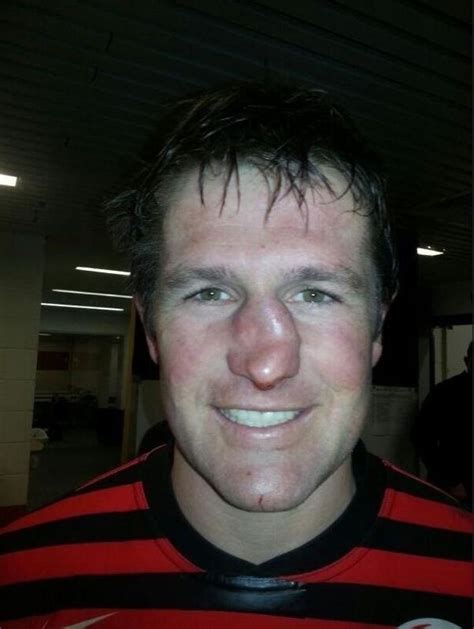 saracens ernst joubert suffers horrific broken nose