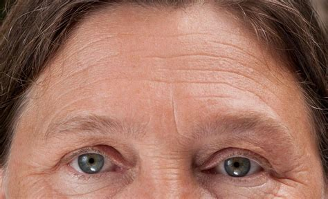 with wrinkled how to remove forehead lines and creases quickly and naturally eradicate brow