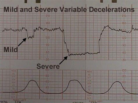 heart monitor pattern fetal heart rate patterns patterns gallery