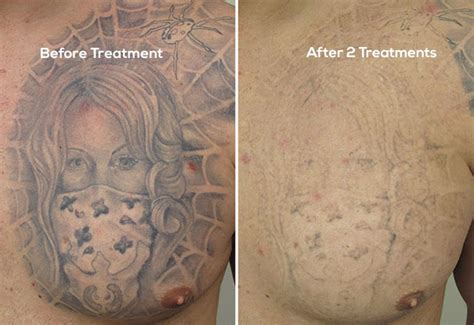 results of laser tattoo removal getting better results between laser removal treatments