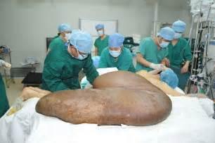 pic of bigest vigina in the world young miracoli della medicina rimosso il tumore pi 249