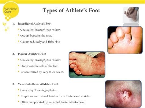 kill athletes foot in shoes kill athlete s foot in shoes 28 images how to treat