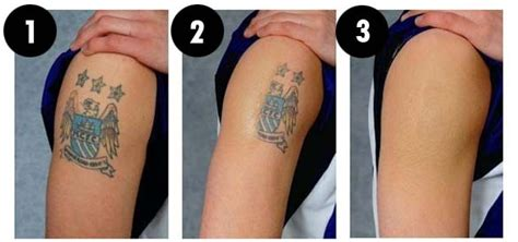 tattoo removal halifax 10 new scientific discovery that actually affect your life