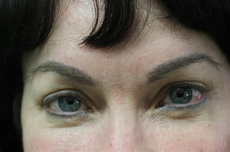 full eyebrows created with fue transplant