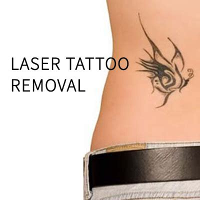 my tattoo removal laser removal laserspa of ta bay