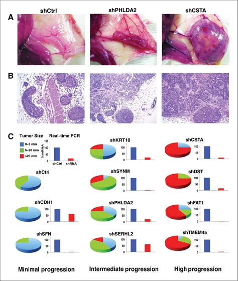 latest dcis breast cancer news and research dcis mystory differentially expressed genes regulating the progression