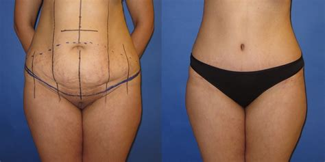 will insurance pay for tummy tuck after c section tummy tuck portland oregon abdominoplasty surgery