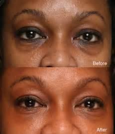 black under eye natural ways to get rid of those dark circles how