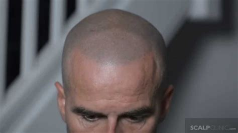 scalp micropigmentation at scalp clinic john s hair