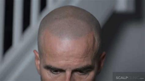 scalp micropigmentation at scalp clinic john s hair