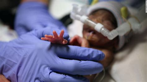born premature definition special nicu mimics mother s womb for micro preemies cnn com