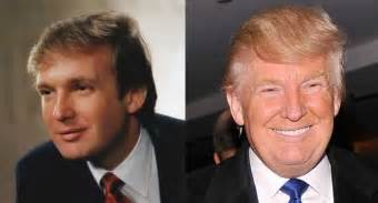 hair age 30 s donald trump hair mystery combover toupee transplant