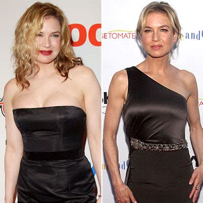 Is Bridget Losing Weight by Renee Zellweger 25 Shocking Weight Changes