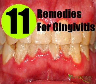 how to cure gingivitis effective ways usa uk herbal
