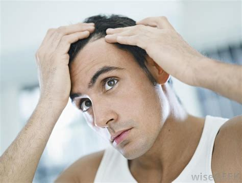 Hair Disease Types by What Are The Different Types Of Hair Disease With Pictures