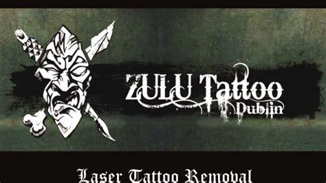 zulu tattoo prices dublin tattoo removal dublin zulu tattoo dublin laser tattoo