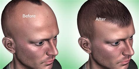 neograft recovery timeline recovery process after fue hair transplant timeline