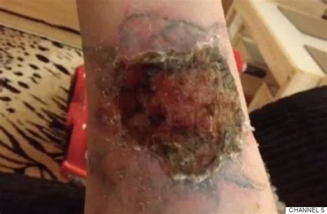 how to speed up tattoo removal removal pours acid on arm in attempt to
