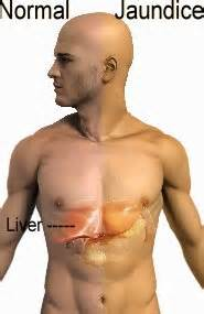 Yellow Skin Liver Detox by Jaundice Symptoms Causes And Treatment