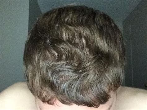How Does Rogaine Shed Last by Hair Loss Help Forums The Science Shedding