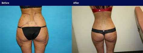 Smart Surgeons smart lipo pictures costs surgeons wall cosmetic