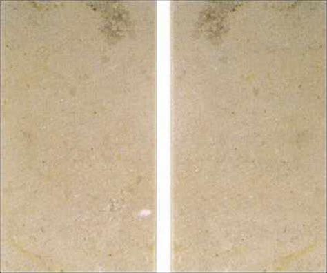granit dunkle flecken randverfaerbung naturstein marmor durch silikon
