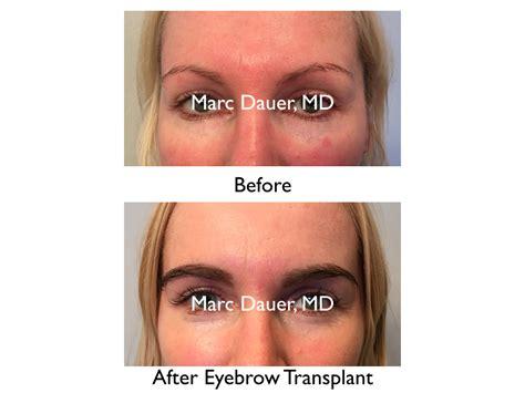 eyebrow transplant spiky hairs eyebrow restoration los angeles eyebrow transplant procedure