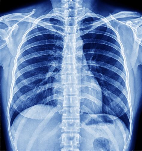 X Ray | 187 2016 cpt 174 codes bring a new glow to spine x ray coding