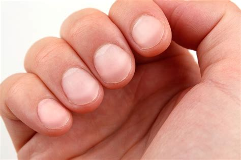 Finger Nail by 6 Diseases Your Can Predict Reader S Digest