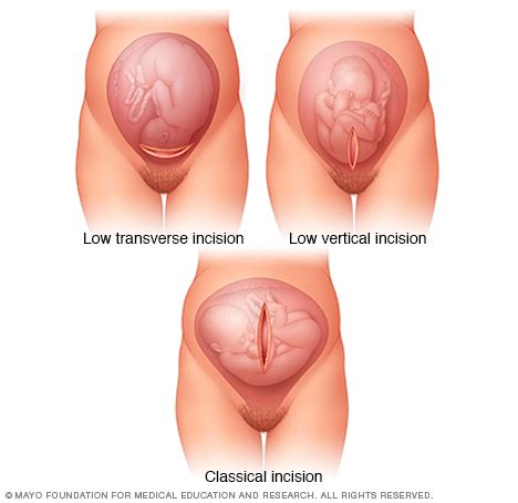 swollen vagina after c section labor induction drugs com