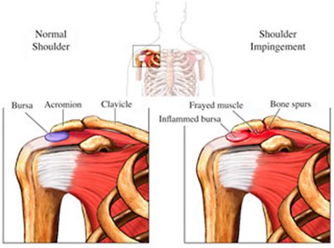 sore shoulder from bench press shoulder pain huw david plymouth