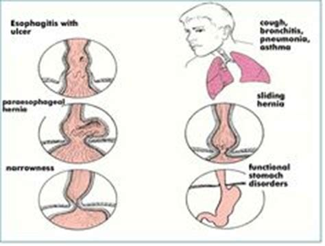 Can Detox Help Achalasia by Features Of And Cases On