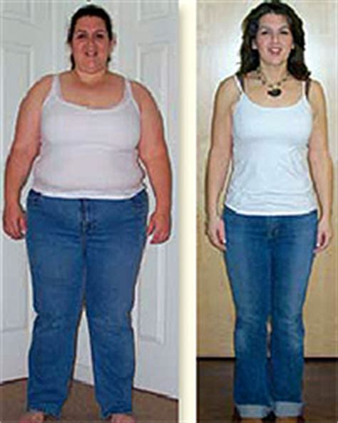 weight loss surgery my gastric band nearly killed me understanding bariatric surgery bariatric surgery center